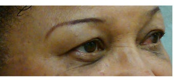 Woman in her 60s treated for dark circles and fine lines with Enerpeel EL eyelid peel after 720964