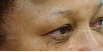 Woman in her 60s treated for dark circles and fine lines with Enerpeel EL eyelid peel before 720964