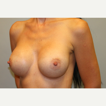 35-44 year old woman treated with Breast Augmentation after 3569983