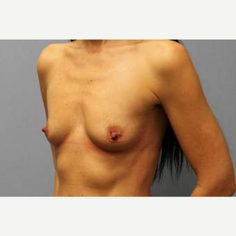 35-44 year old woman treated with Breast Augmentation before 3569983