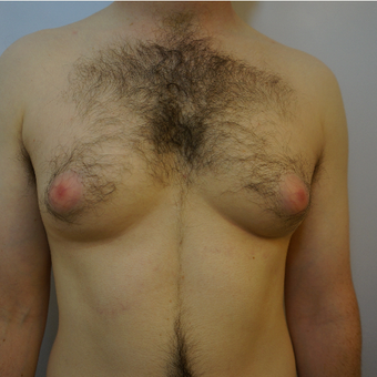 Gynaecomastia treatment with VASER liposuction in 33 year old man before 3826048