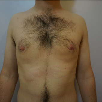 Gynaecomastia treatment with VASER liposuction in 33 year old man after 3826048