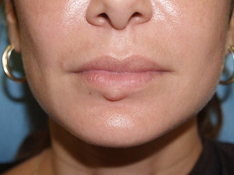 Extensive repair of scarring and deformity as a result of silicone and BioPolymer lip injections before 695976