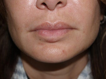 Extensive repair of scarring and deformity as a result of silicone and BioPolymer lip injections after 695976