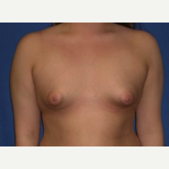 18-24 year old woman treated with Breast Augmentation before 3219919