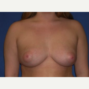 18-24 year old woman treated with Breast Augmentation after 3219919