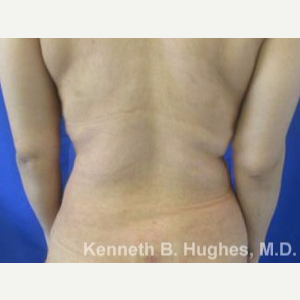 Liposuction Revision after 3164397