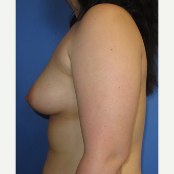 18-24 year old woman treated with Breast Augmentation (360cc) before 3247453