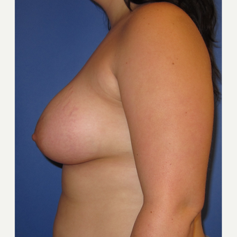 18-24 year old woman treated with Breast Augmentation (360cc) after 3247453
