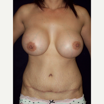 Full Tummy Tuck with Saline Implants after 3141555