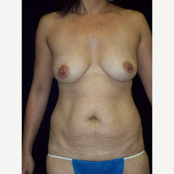 Full Tummy Tuck with Saline Implants before 3141555