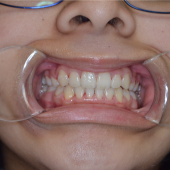 17 or under year old woman treated with Braces after 3333318