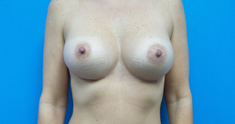 45-54 year old female treated with Breast Augmentation 410 implants after 1736417