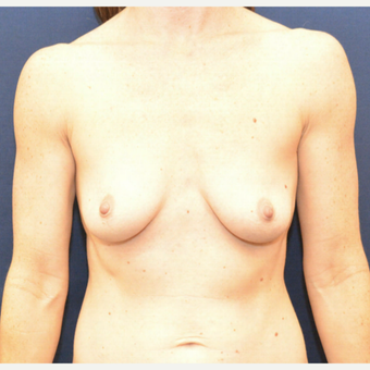 55-64 year old woman treated with Breast Augmentation before 3726829