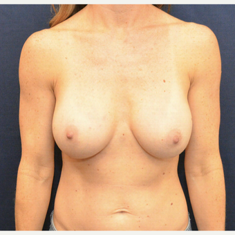 55-64 year old woman treated with Breast Augmentation after 3726829