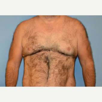 40 year old man treated with Male Breast Reduction before 3088887