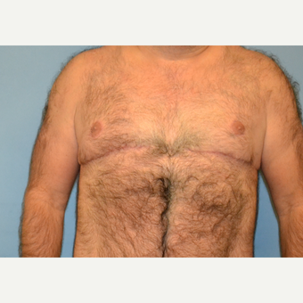 40 year old man treated with Male Breast Reduction after 3088887