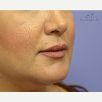 35-44 year old woman treated with Lip Augmentation after 3421900