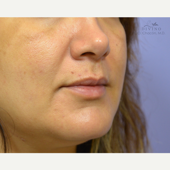 35-44 year old woman treated with Lip Augmentation before 3421900