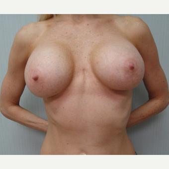35-44 year old woman treated with Breast Augmentation after 3823151