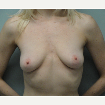35-44 year old woman treated with Breast Augmentation before 3823151