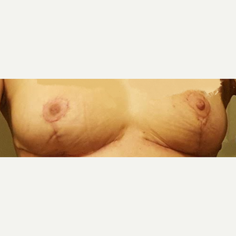 25-34 year old woman treated with Breast Implant Removal after 3424217