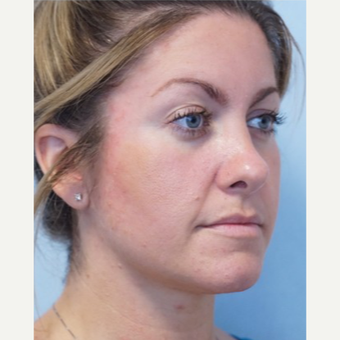 25-34 year old woman treated with Revision Rhinoplasty after 3686781