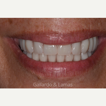 55-64 year old woman treated with All-on-4 Dental Implants after 2884727