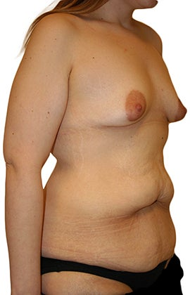 Lower Body lift, Breast Augmentation 543105