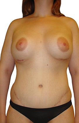 Lower Body lift, Breast Augmentation after 543105