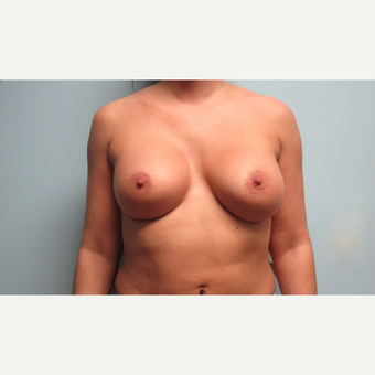 35-44 year old woman treated with Breast Implants after 3301194