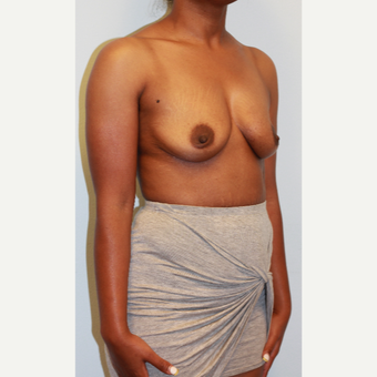 25-34 year old woman treated with Breast Augmentation before 3162987