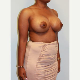 25-34 year old woman treated with Breast Augmentation after 3162987