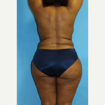 35-44 year old woman treated with Smart Lipo. 2 months post-op after 3437506