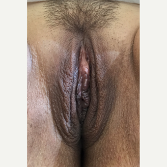 35-44 year old woman treated with Labiaplasty after 3464705