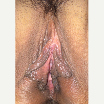35-44 year old woman treated with Labiaplasty before 3464705