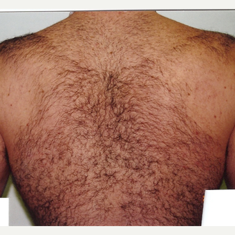 Laser Hair Removal Male 28 year old before 3213470