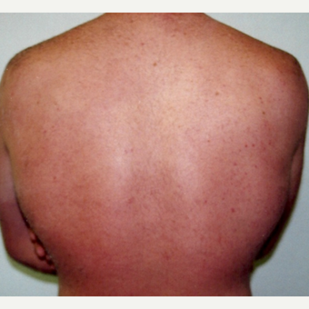Laser Hair Removal Male 28 year old after 3213470