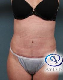 35-44 year old woman treated with Tummy Tuck 3218328