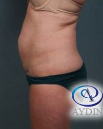 35-44 year old woman treated with Tummy Tuck before 3218328