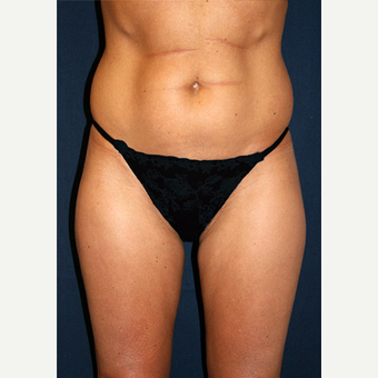 25-34 year old woman treated with Smart Lipo before 3782572