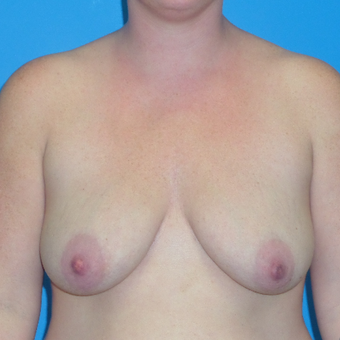 35-44 year old woman treated with Breast Lift before 3174624