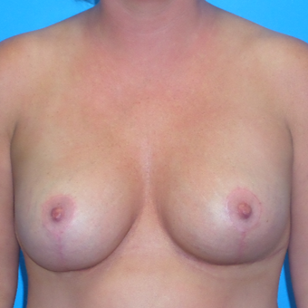 35-44 year old woman treated with Breast Lift after 3174624
