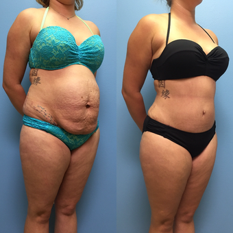 30 year-old woman treated with Tummy Tuck and Lipo 360 before 3494915
