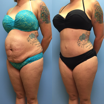 30 year-old woman treated with Tummy Tuck and Lipo 360 after 3494915