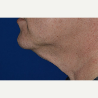 55-64 year old man treated with Chin Laser Liposuction (Smart Lipo) before 3638186