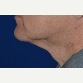 55-64 year old man treated with Chin Laser Liposuction (Smart Lipo) after 3638186