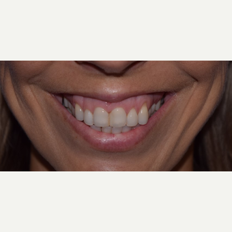 "35-44 year old woman with ""Gummy Smile"" treated with Botox before 3345661"
