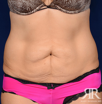 Tummy Tuck before 1810733