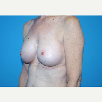 45-54 year old woman treated with Breast Implants after 3440059